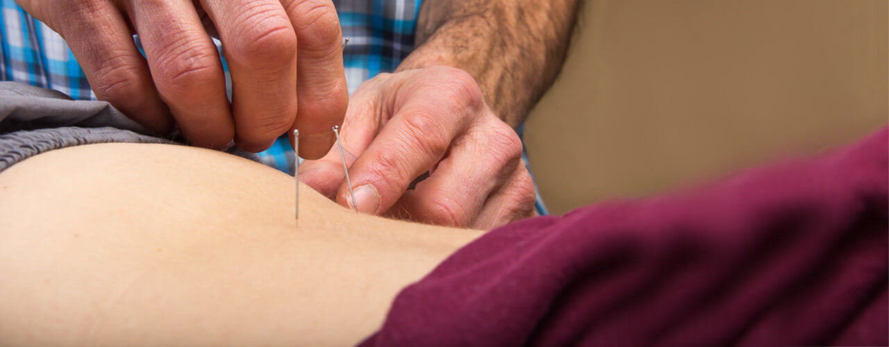 dry needling Lexington, KY